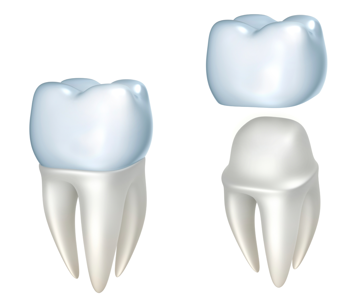 Dental Crowns Protect Your Teeth & Enhance Your Smile ...