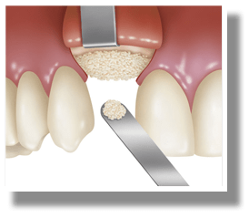 bone-grafting-2