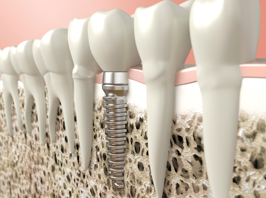 bone regeneration richmond dentist